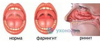 Острый назофарингит у детей – симптомы и лечение у ребенка
