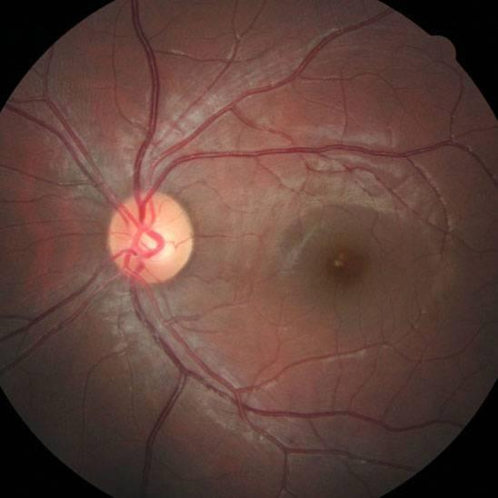 признаки разрыва сетчатки глаза