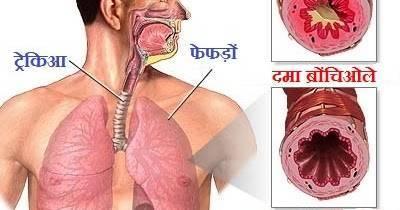 Лечение остаточного кашля после бронхита у ребенка