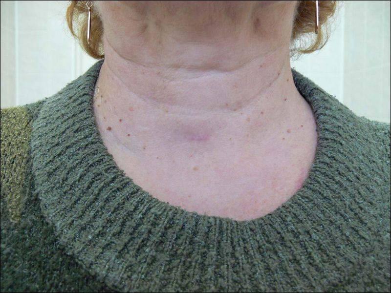 Операция щитовидной железы | pro shchitovidku