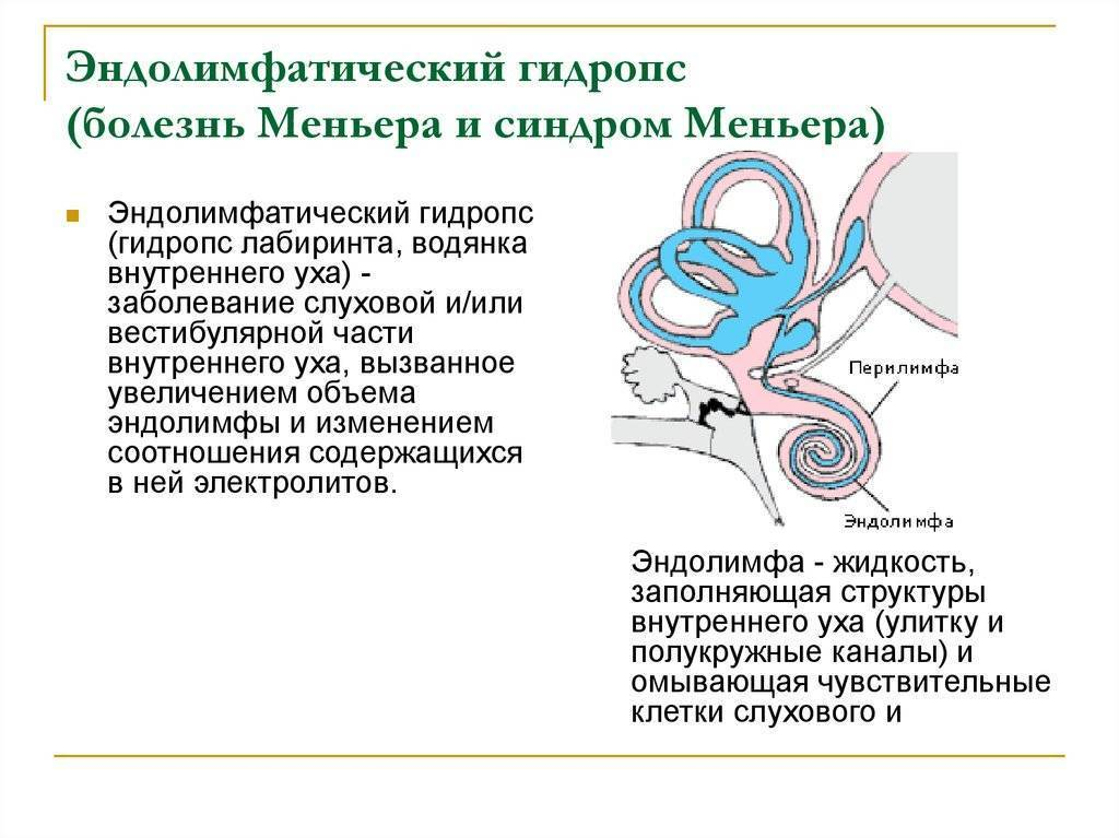 Лечение болезни меньера народными средствами