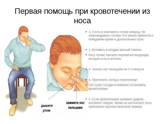 Причины носового кровотечения в ночное время