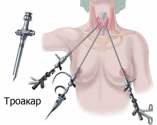 анализы после удаления щитовидной железы