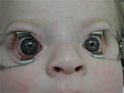 Глаукома у детей