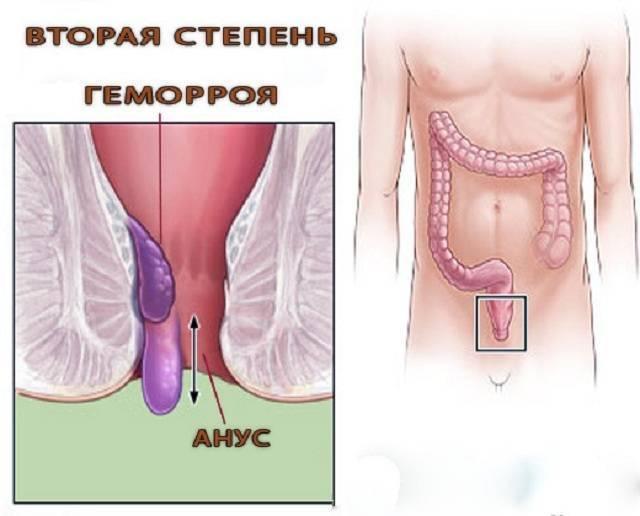 Геморрой 2 степени: лечение, симптомы