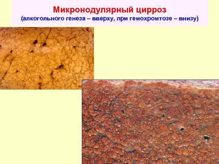 Причины и лечение мелкоузлового цирроза печени