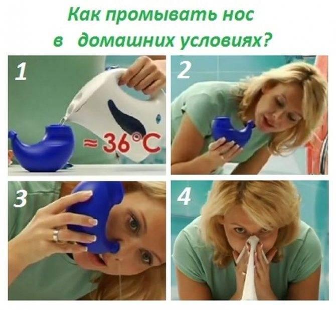 Промывание носа солевым раствором в домашних условиях: рецепт приготовления и пошаговая инструкция