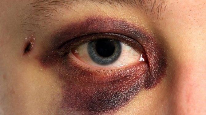 Как быстро убрать синяк под глазом и на теле в домашних условиях?