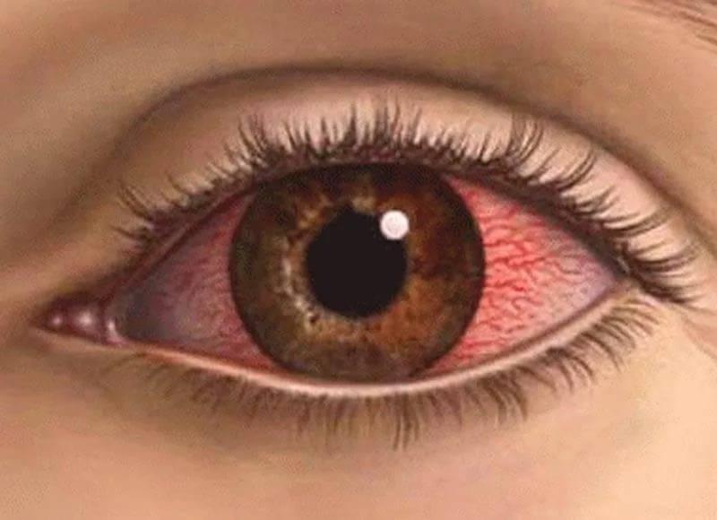 Ожог роговицы глаза — лечение, что делать, последствия