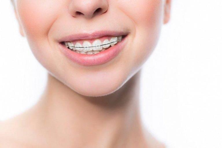 Больно ли ставить, носить и снимать брекеты на зубах