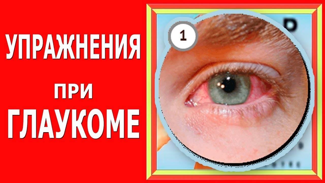 Гимнастика и упражнения для глаз при глаукоме и катаракте