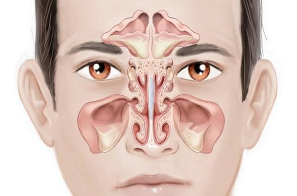 Особенности аллергической формы синусита