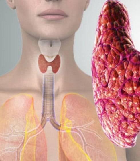 Повышенное давление при щитовидной железе