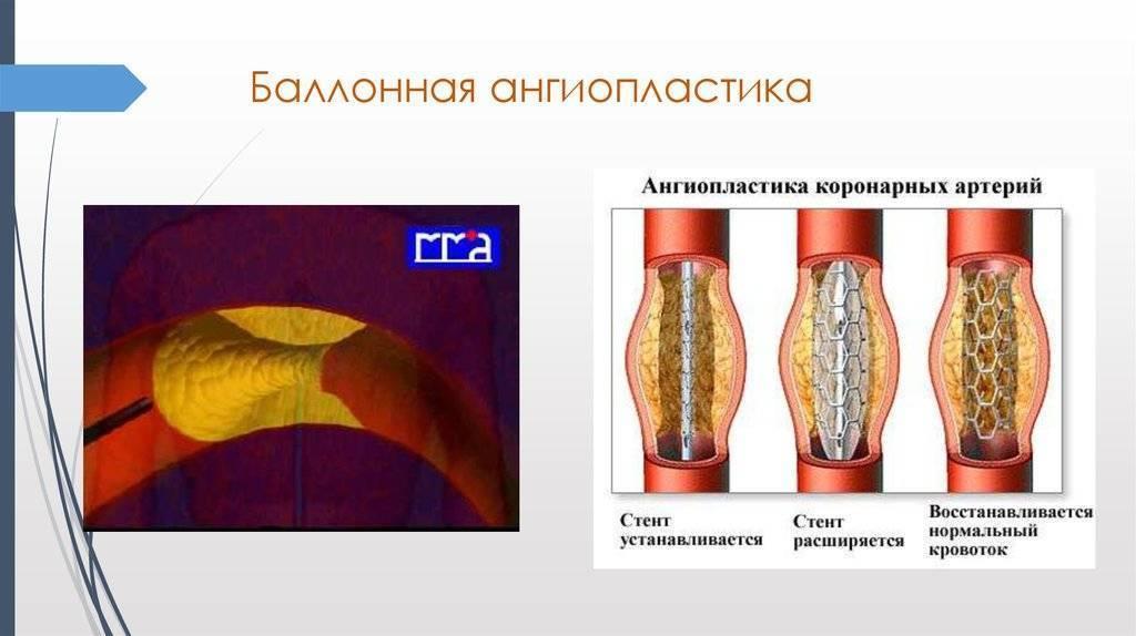 Ангиопластика сосудов нижних конечностей