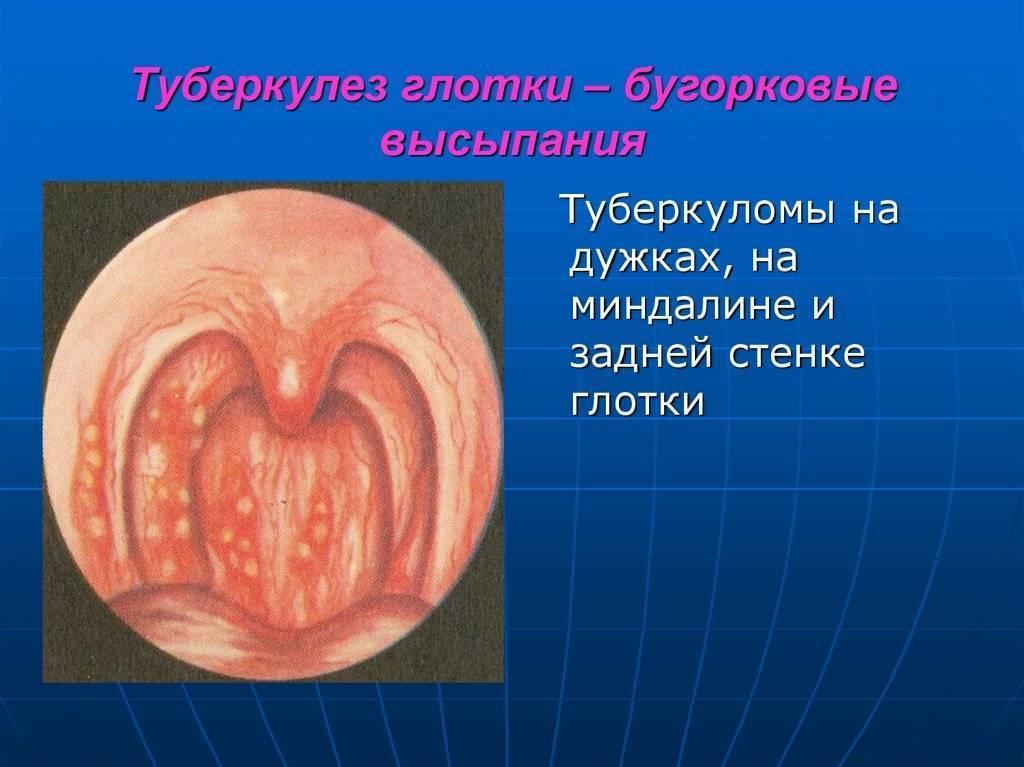 Туберкулёз гортани: признаки, диагностика и лечение