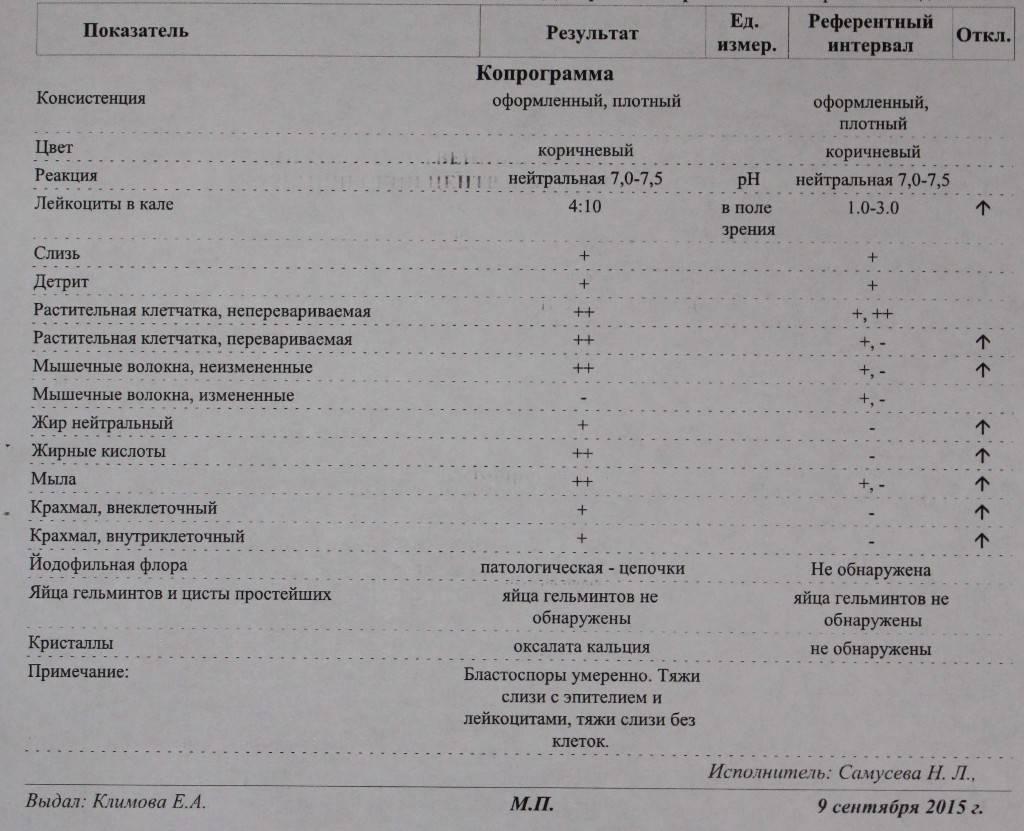 синдром жильбера диагностика