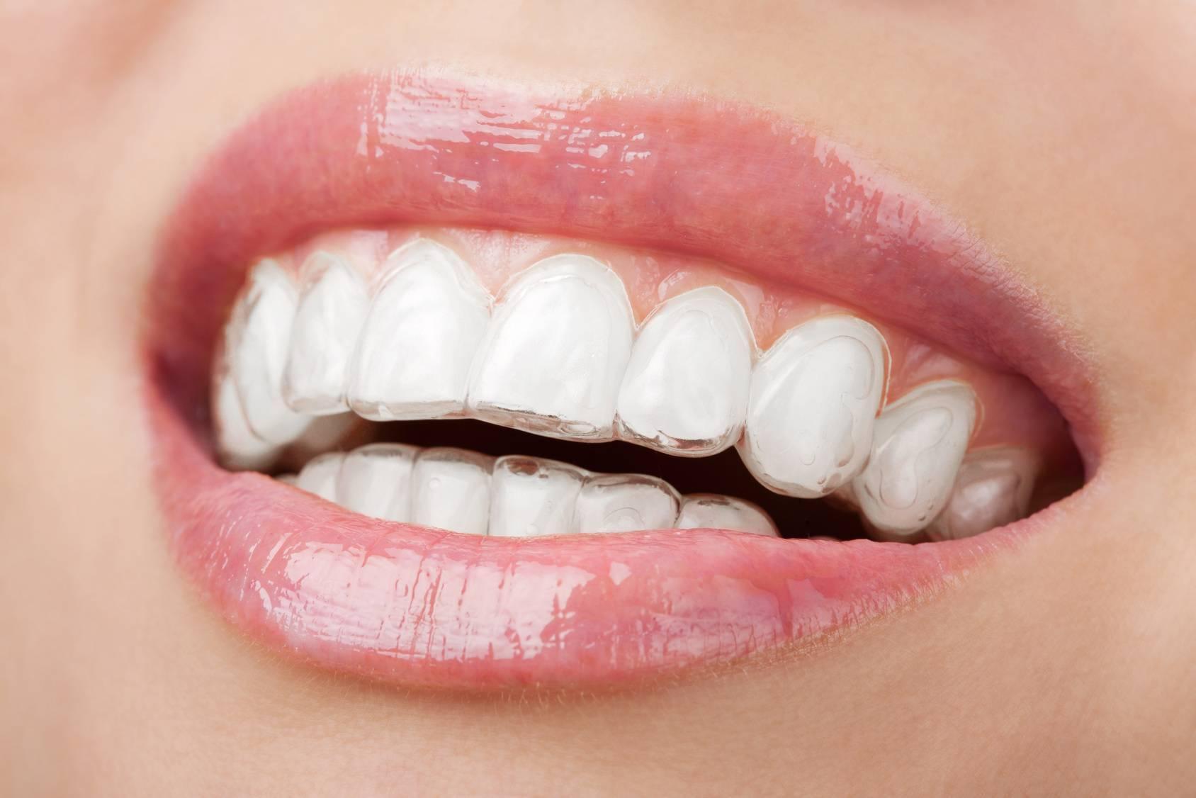 как выравнивают зубы