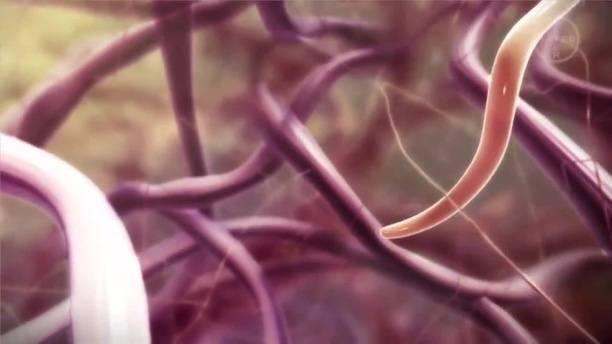 дирофиляриоз симптомы у человека
