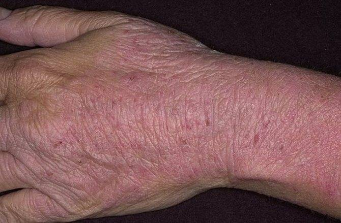 Атопический дерматит. начало.