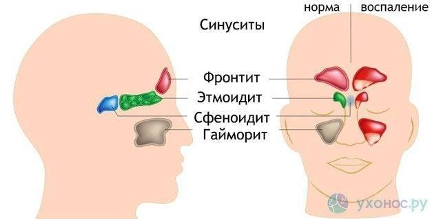 Сфеноидит (острый и хронический): что это, признаки, симптомы, лечение у взрослых