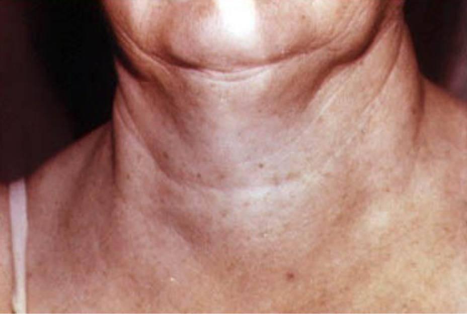 Диффузный зоб щитовидной железы – симптомы и причины развития