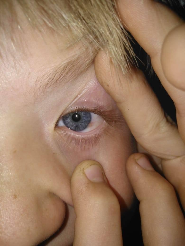 пузырек на белке глаза прозрачный