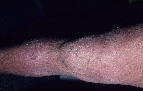 Дерматит на ногах — фото с описанием симптомов, лечение, причины