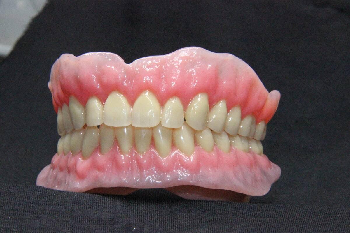 изготовление зубных съемных протезов