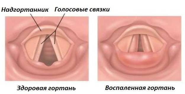 Ларинготрахеит у детей - симптомы. лечение острого и стенозирующего ларинготрахеита в домашних условиях