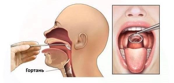 Рак  гортани. причины, симптомы, диагностика и лечение заболевания