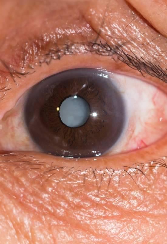 Операция на глаза: виды и стоимость