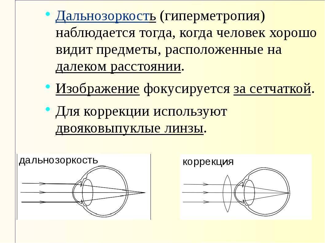Какие есть методы коррекции дальнозоркости?