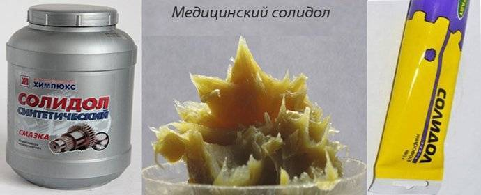 Эффектвное использование солидола при псориазе