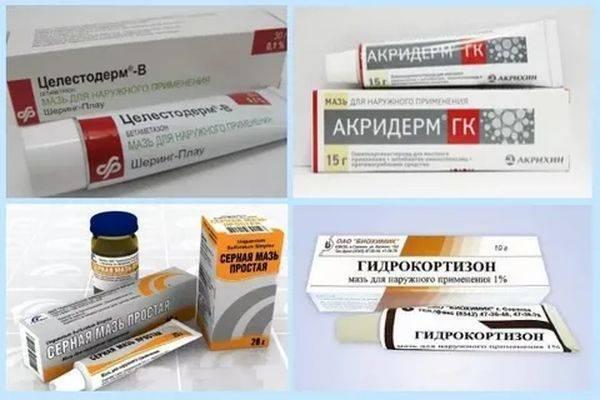 Себорейный дерматит на лице – лечение: шампунь, мази, крема и таблетки от себореи – 4 лучших средства