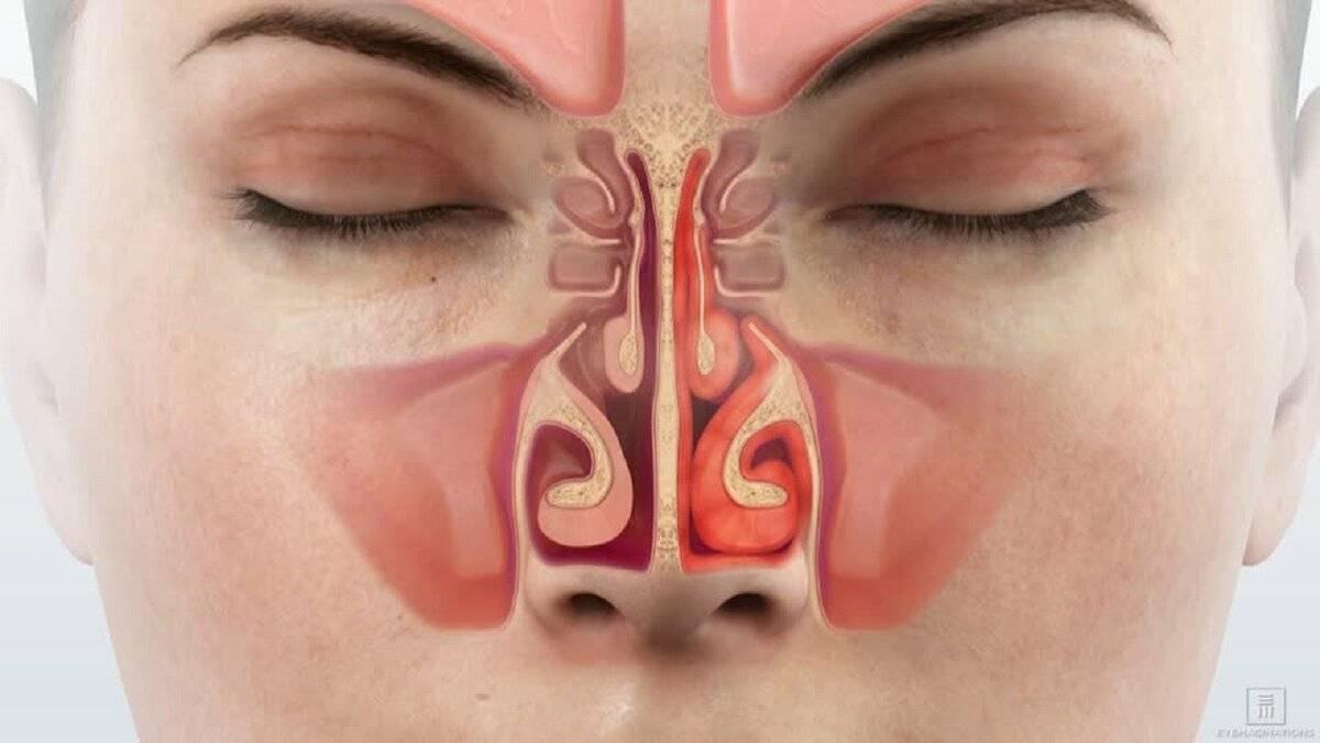 чем снять отек носа при насморке