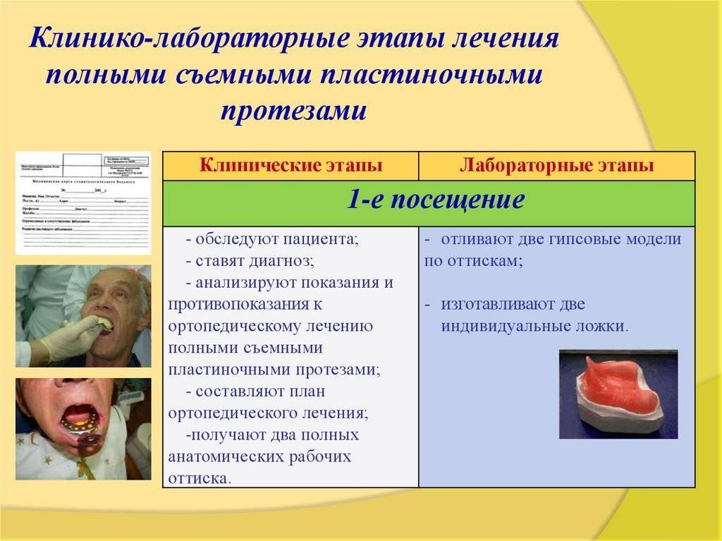 Клинико-лабораторные этапы изготовления цельнолитого бюгельного протеза с кламмерной системой фиксации