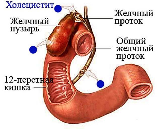 Что делать при возникновении холецистита и панкреатита одновременно