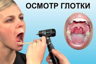 Субатрофический фарингит: лечение, симптомы, фото, что это такое