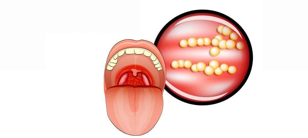 Ангина (тонзиллит), вызванная стафилококком