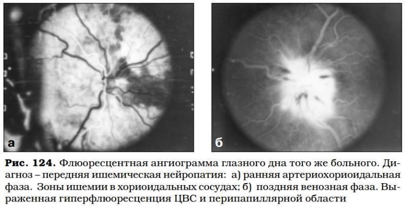 Ишемическая оптическая нейропатия передняя — википедия с видео // wiki 2