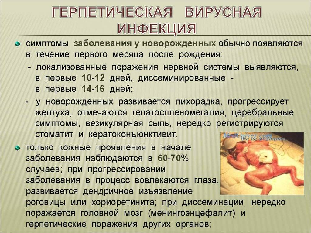 герпес у ребенка 2 года лечение