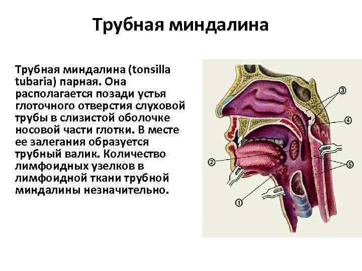 воспаление трубных миндалин симптомы