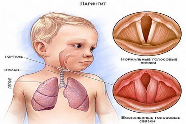 Эпиглоттит: причины, симптомы и методы лечения