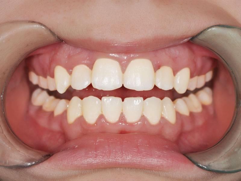 могут ли кривые зубы сами выровняться