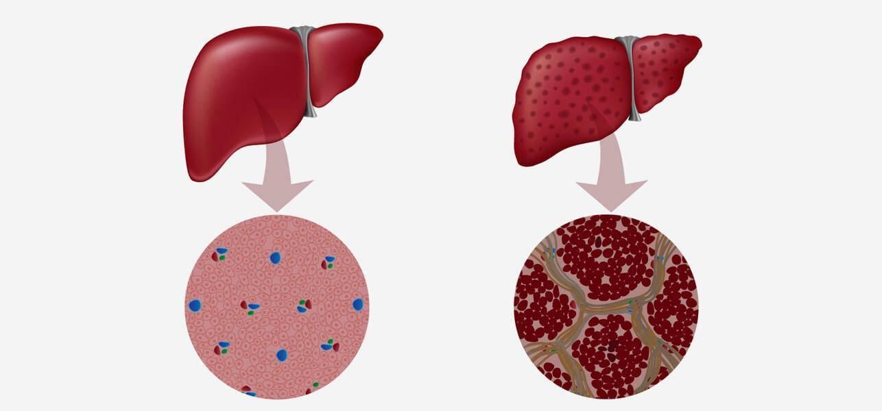 Чем опасен вирусный гепатит с
