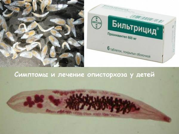 Описторхоз в клинической практике врача-инфекциониста