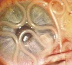 Паразиты в глазах человека: симптомы, лечение, профилактика