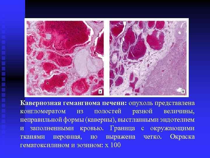 кавернозная гемангиома печени лечение