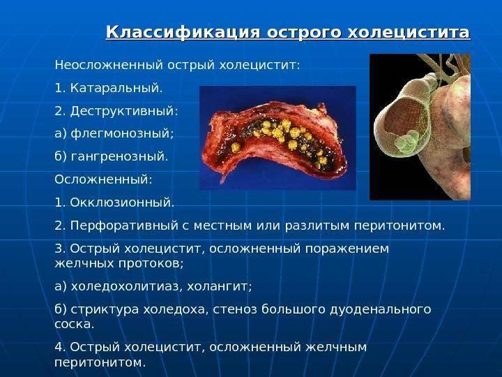 боли при остром холецистите
