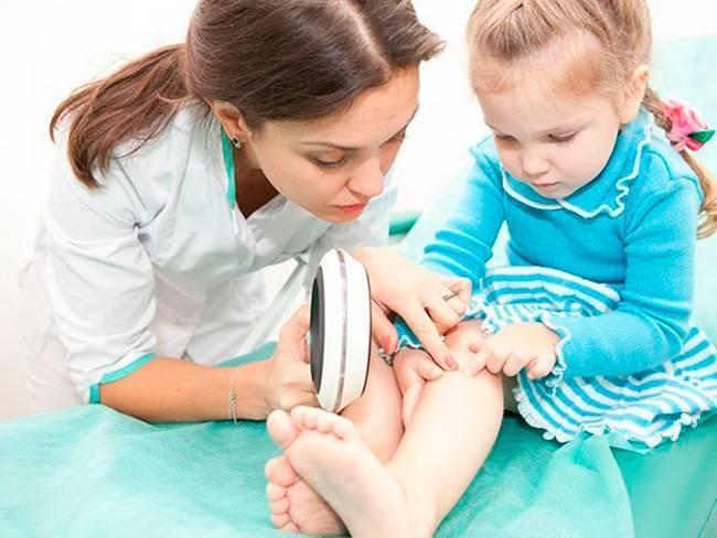 Псориаз у детей: типы, проявления и стратегия лечения